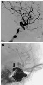 A: Postembolization angiography reveals a marked reduction in flow through the carotid-cavernous fistula and a significant increase in redirection of flow to the left anterior circulation. B: Note the coil mass in the posterior cavernous sinus (black arrow) placed during the transvenous embolization.